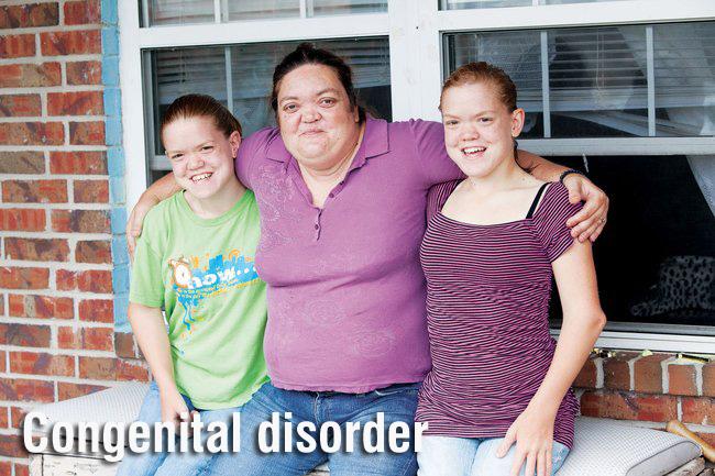 A Common Boy's Congenital Birth Defect